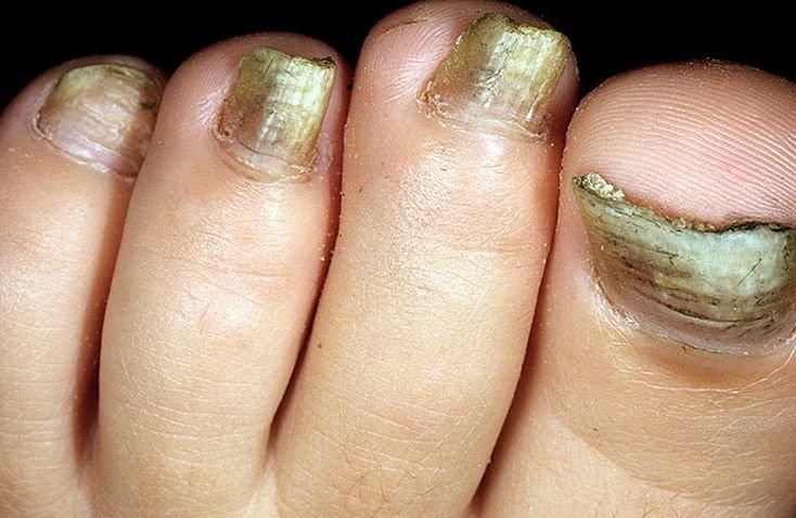 Грибок ногтей нсп - О грибке ногтей